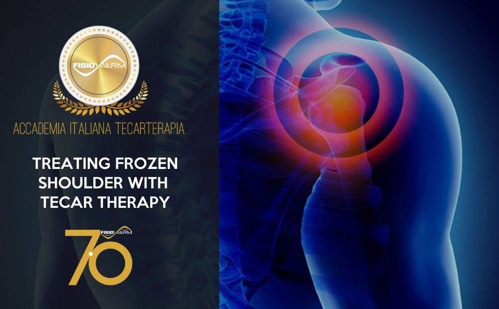 Treating frozen shoulder with tecar therapy